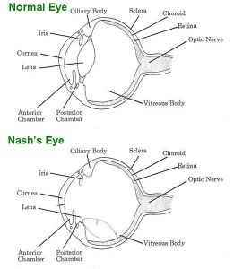 A diagram of what Nash's eye now looks like on the inside.